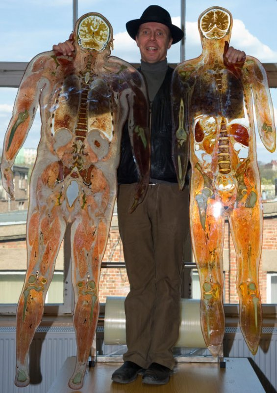 Here von Hagens shows off two of the full human cross sections that will be for sale at the Plastinarium - but only for health professionals. Photo: DPA