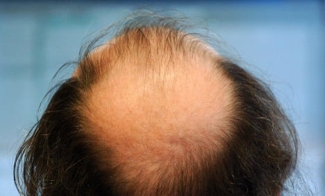 Stem cell hair follicle creates hope for the bald, lab animals