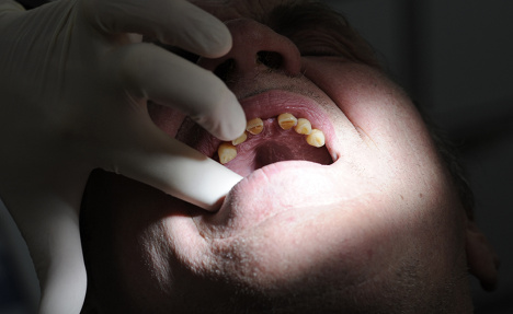 Dentist 'cut off own finger in fake robbery'