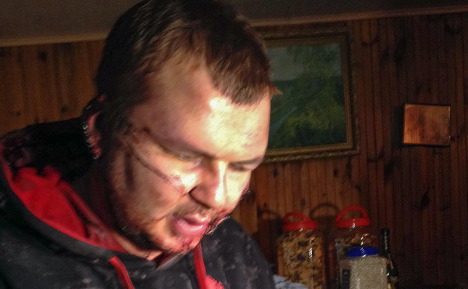Tortured Ukrainian can come to Germany