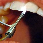 Mentally-ill man lost all teeth to new-age dentist